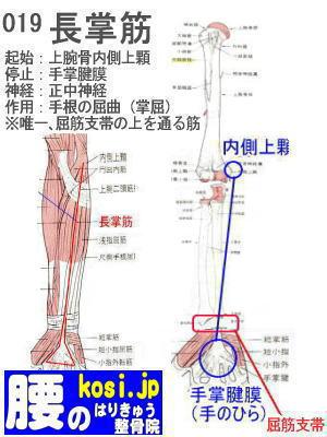 長掌筋、福岡 太宰府、ぎっくり腰【腰痛専門】こしの鍼灸整骨院