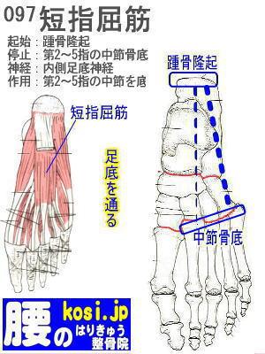 短指屈筋、福岡 太宰府、ぎっくり腰【腰痛専門】こしの鍼灸整骨院