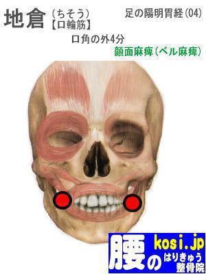 地倉、ぎっくり腰【腰痛専門】腰のはりきゅう整骨院、福岡太宰府