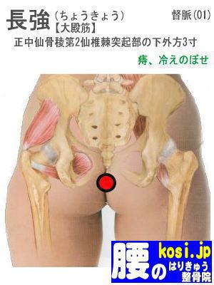 長強、ぎっくり腰【腰痛専門】腰のはりきゅう整骨院、福岡太宰府