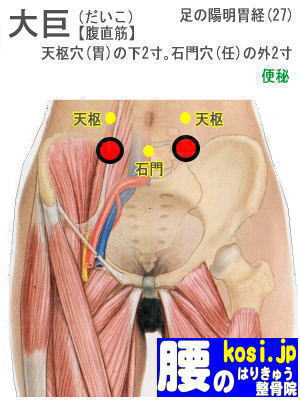 大巨、ぎっくり腰【腰痛専門】腰のはりきゅう整骨院、福岡太宰府