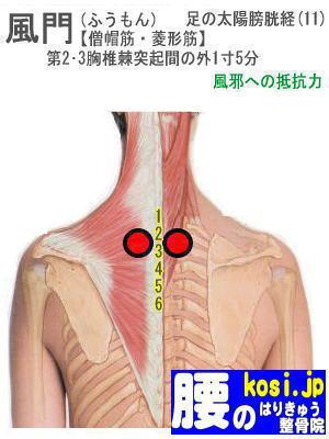風門、福岡 太宰府 こしの鍼灸整骨院