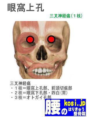 眼窩上孔、福岡太宰府、ぎっくり腰【腰痛専門】腰のはりきゅう整骨院