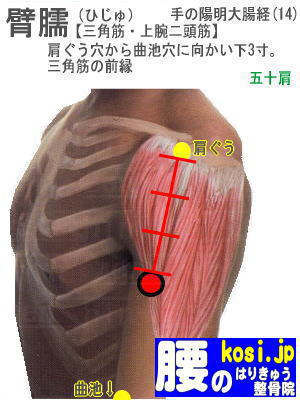 臂臑、福岡 太宰府 こしの鍼灸整骨院