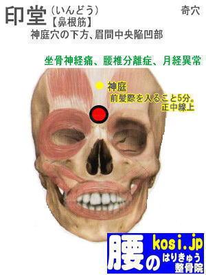 印堂、ぎっくり腰【腰痛専門】腰のはりきゅう整骨院、福岡太宰府
