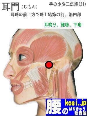 耳門、福岡 太宰府 こしの鍼灸整骨院