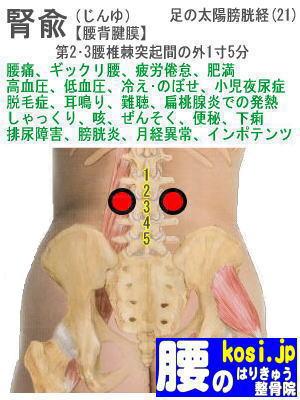 腎兪、ぎっくり腰【腰痛専門】腰のはりきゅう整骨院、福岡太宰府