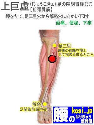上巨虚、福岡太宰府、ぎっくり腰【腰痛専門】腰のはりきゅう整骨院