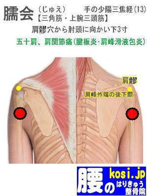 臑会、福岡太宰府、ぎっくり腰【腰痛専門】腰のはりきゅう整骨院