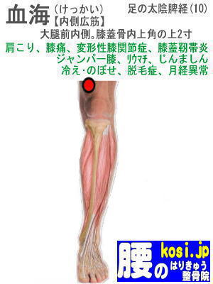 血海、ぎっくり腰【腰痛専門】腰のはりきゅう整骨院、福岡太宰府