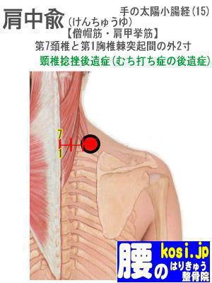 肩中兪、福岡太宰府、ぎっくり腰【腰痛専門】腰のはりきゅう整骨院