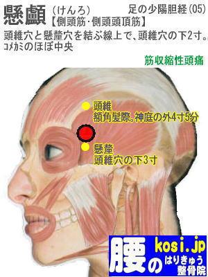 懸顱、福岡 太宰府 こしの鍼灸整骨院