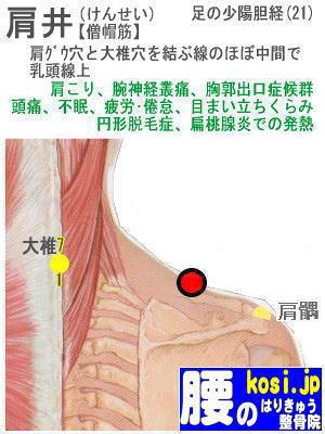 肩井、福岡太宰府、ぎっくり腰【腰痛専門】腰のはりきゅう整骨院