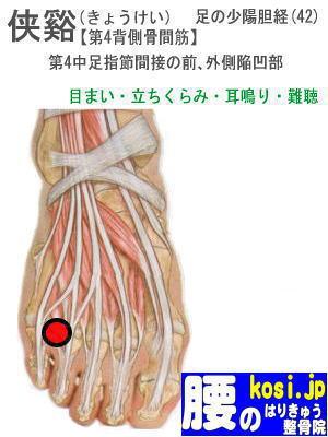 侠谿、福岡太宰府、ぎっくり腰【腰痛専門】腰のはりきゅう整骨院