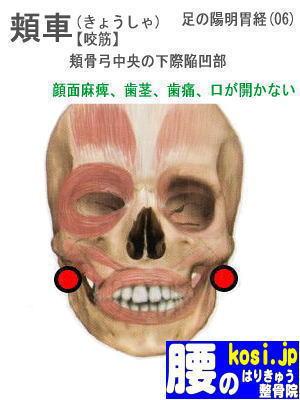 頬車、福岡太宰府、ぎっくり腰【腰痛専門】腰のはりきゅう整骨院