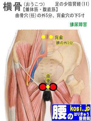 横骨、福岡太宰府、ぎっくり腰【腰痛専門】腰のはりきゅう整骨院