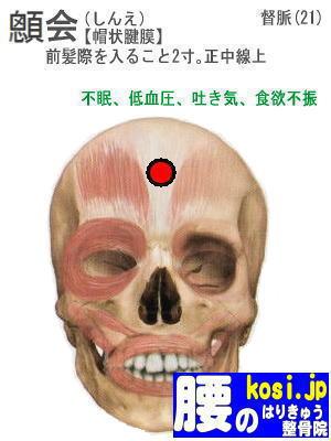 しん会、ぎっくり腰【腰痛専門】腰の整骨院、福岡太宰府