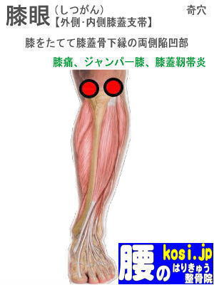 膝眼、福岡太宰府、ぎっくり腰【腰痛専門】腰のはりきゅう整骨院