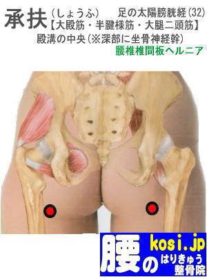 承扶、ぎっくり腰【腰痛専門】腰のはりきゅう整骨院、福岡太宰府