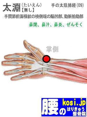 太淵、福岡太宰府、ぎっくり腰【腰痛専門】腰のはりきゅう整骨院