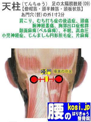天柱、福岡太宰府、ぎっくり腰【腰痛専門】腰のはりきゅう整骨院