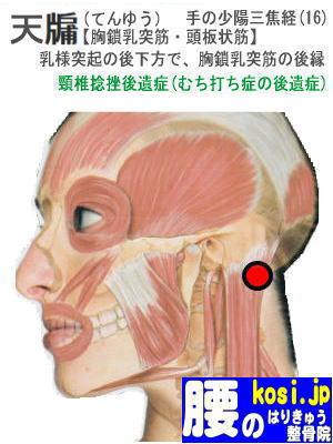 天ゆう、福岡太宰府、ぎっくり腰【腰痛専門】腰のはりきゅう整骨院