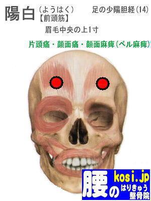陽白、福岡太宰府、ぎっくり腰【腰痛専門】腰のはりきゅう整骨院
