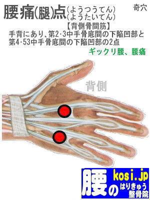腰痛点、福岡太宰府、ぎっくり腰【腰痛専門】腰のはりきゅう整骨院