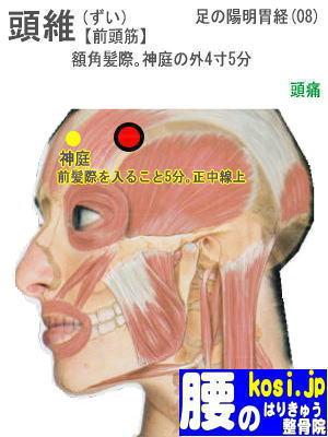 頭維、ぎっくり腰【腰痛専門】腰のはりきゅう整骨院、福岡太宰府